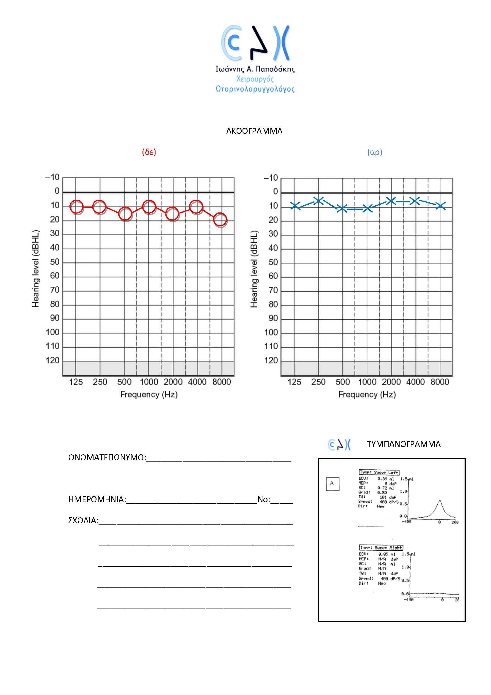 Ακοογραμμα+τυμπανόγραμμα site