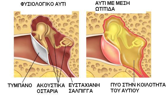 Ωτίτιδα
