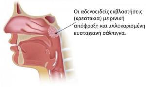 kreatakia-ti-provlimata-prokaloun1