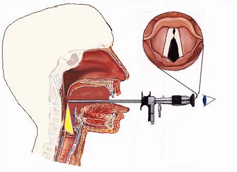 Ενδοσκόπηση λάρυγγα με άκαμπτο ενδοσκόπιο