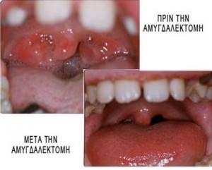 Αμυγδαλεκτομή 2